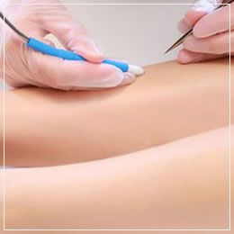 Needle epilation & flash